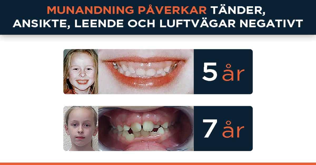 Munandning påverkar tänder, ansikte, leende och luftvägar negativt